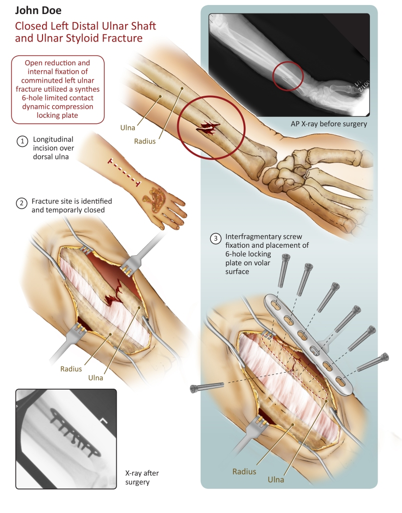 Closed left distal ulnar shaft and ulnar styloid fracture (Adobe Ⓒ Photoshop, Adobe Ⓒ Illustrator and Adobe Ⓒ InDesign)
