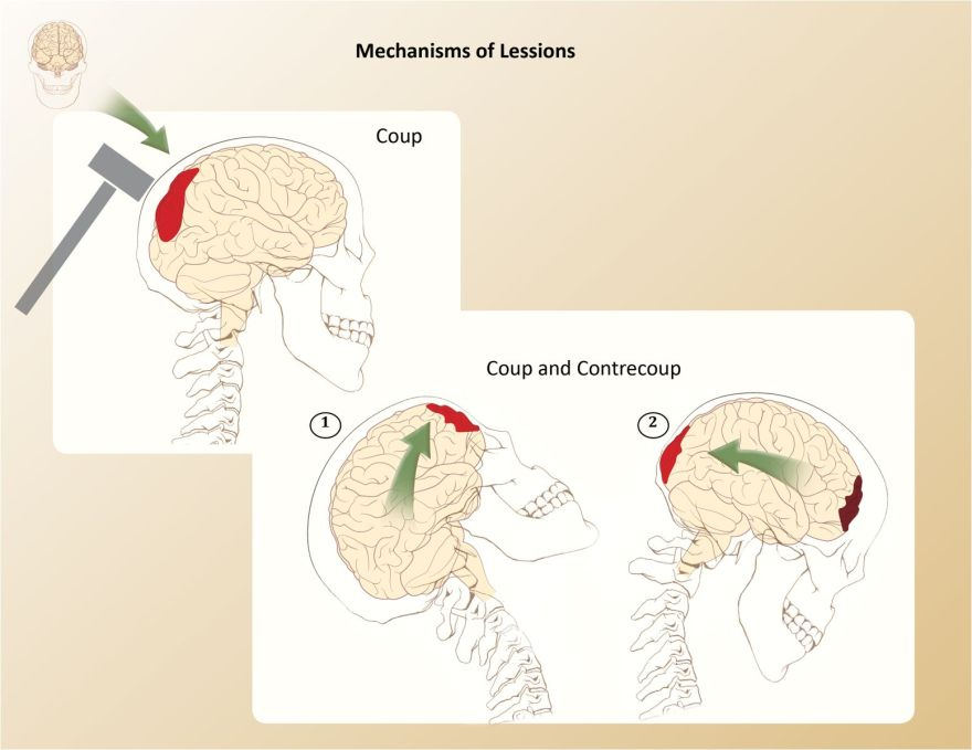 Mechanism of Lessions  (Graphite, Adobe© Illustrator, Adobe© Photoshop, and Adobe© InDesign)